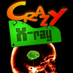 Verrücktes X-Ray